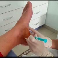 tratamientos con medicamentos en la zona de los pies