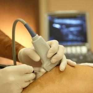 tratamiento invasivo muy eficaz para lesiones de musculatura y tendones