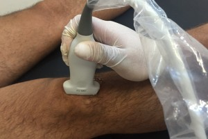 tratamiento fisioterapia mediante ecografía