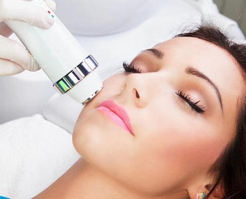 Clínica Forma - Radiofrecuencia facial