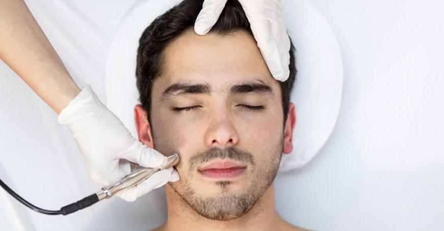 Radiofrecuencia facial para hombres